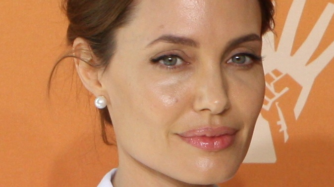 Ditch Dairy, Meat, and Fish for Your Breasts, Says Angelina Jolie's Cancer Surgeon